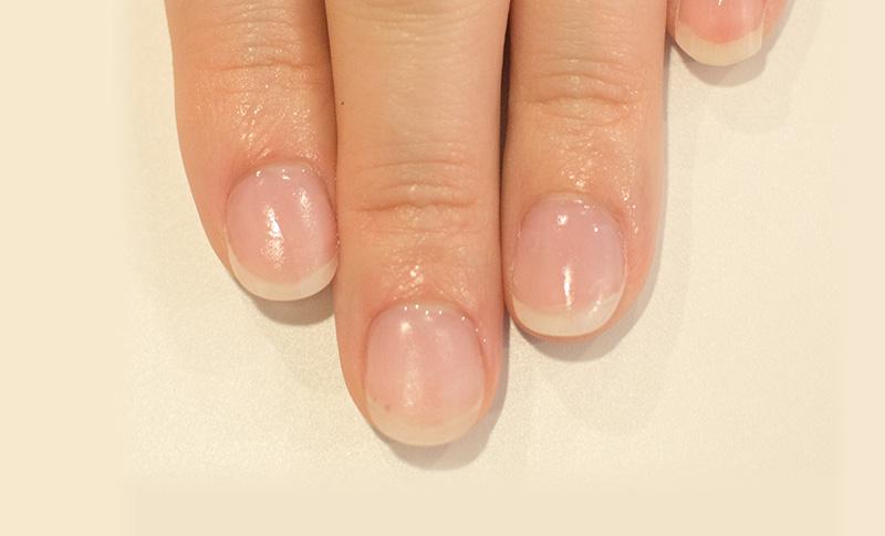 爪噛み予防メニュー