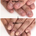 自分で深爪を直す3つの方法 ネイルサロンに行かずに深爪矯正を行うには