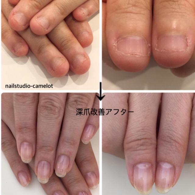 深爪に悩んでいるなら男性こそネイルサロンでの深爪矯正が