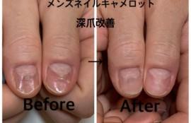 深爪矯正ネイルサロンが教える爪の形のコンプレックスを治す3つの方法