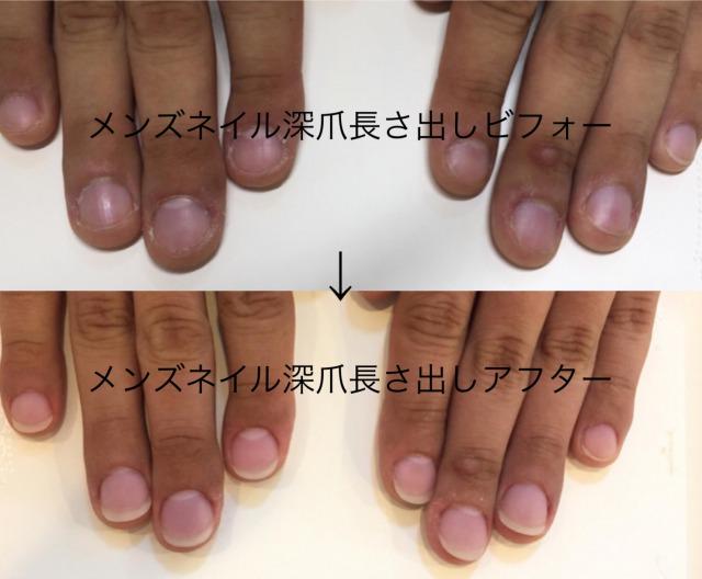メンズネイルキャメロットの深爪矯正について