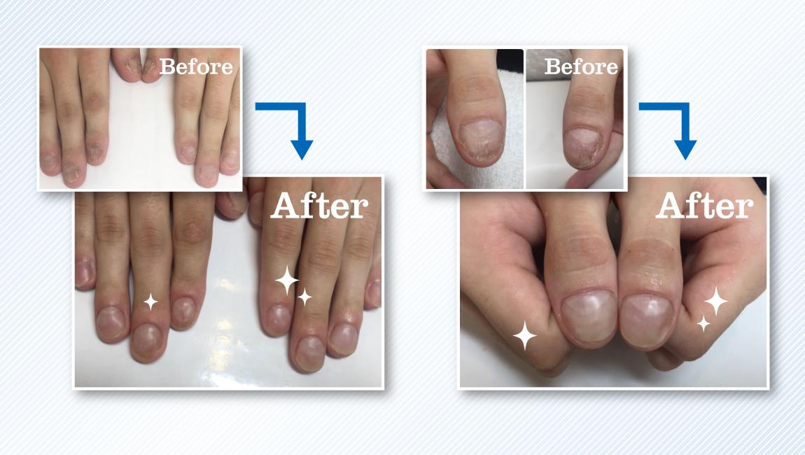 深爪改善・爪噛予防専門メンズネイルサロン キャメロット池袋・恵比寿