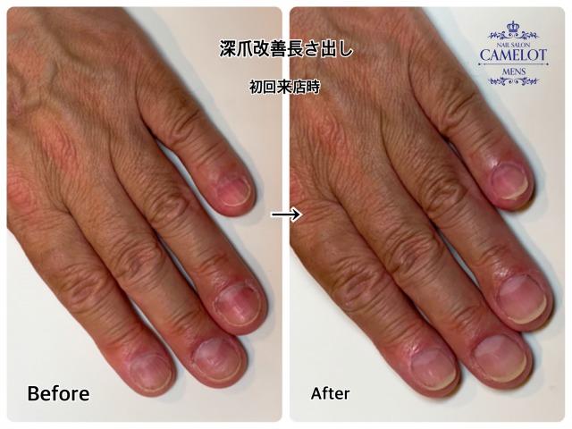 恵比寿店メンズネイルが教える深爪 噛み癖を直す3つのポイント
