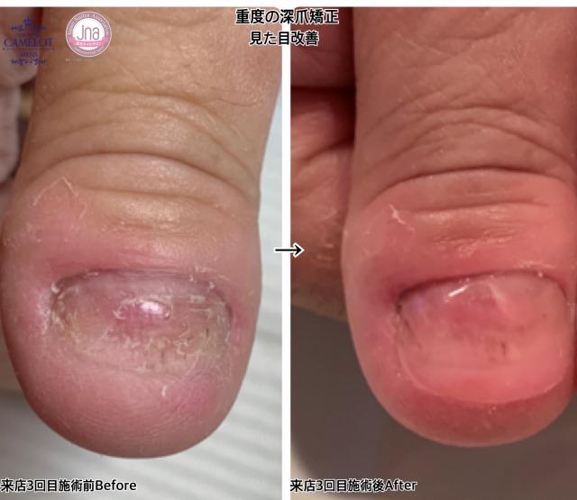 重度の深爪Before After経過のご紹介