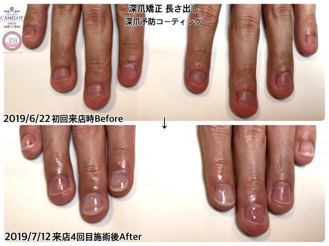 爪噛み改善 Before After経過参考写真