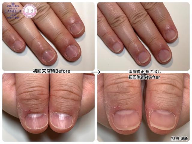 メンズネイルキャメロットの深爪矯正とは?