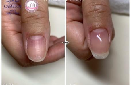 メンズネイルキャメロット深爪矯正・深爪予防