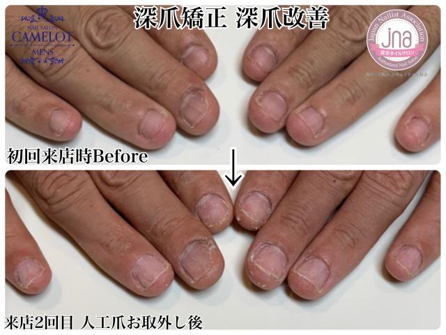 深爪矯正から深爪改善されたお客様のご紹介