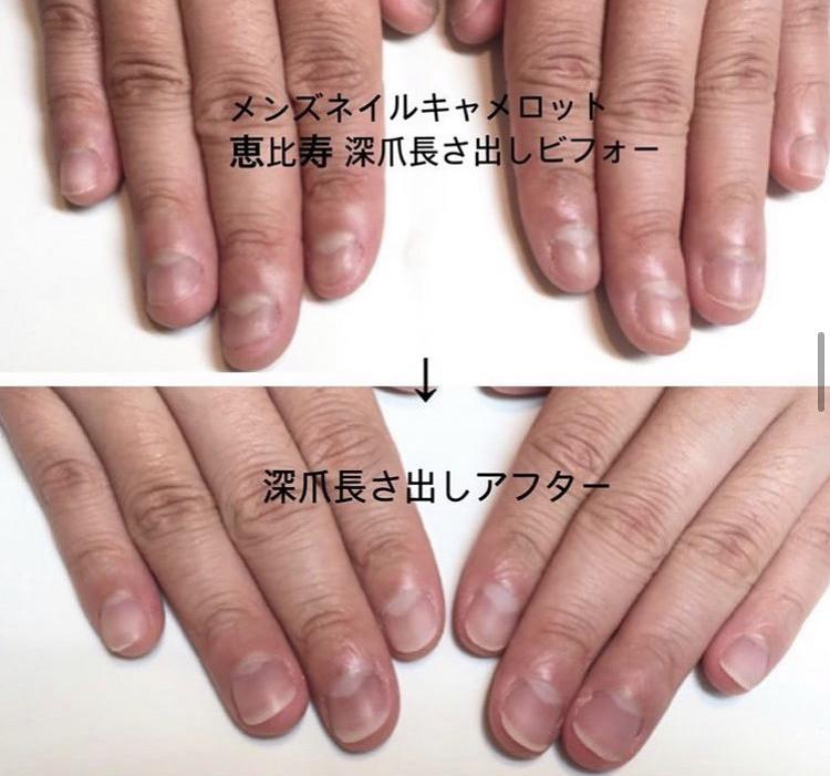 メンズネイルサロンキャメロットの深爪改善 「男がネイルサロン?」コロナだからこそ今!周りに気づかれない深爪矯正