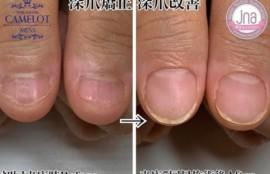 深爪矯正後の経過紹介